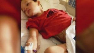 Mosquito bite causes boy's brain to swell