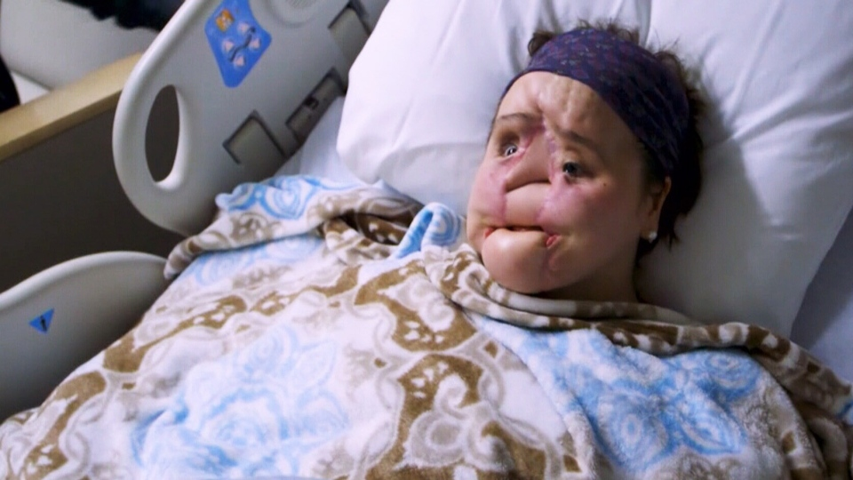 Katie Stubblefield underwent more than 20 surgeries ahead of the transplant.