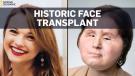 Face transplant second chance for suicide survivor