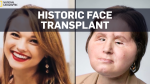 Face transplant second chance for suicide survivor