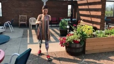 Darrel Janz profiles a woman who is learning to walk again after all four limbs were amputated because of severe sepsis.
