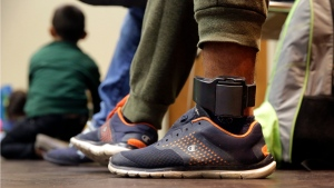 In this Monday, July 23, 2018 file photo, Carlos Fuentes Maldonado, an immigrant from Honduras seeking asylum who was released and reunited with his family, wears an ankle monitor as he waits at a Catholic Charities facility in San Antonio. (AP Photo/Eric Gay)