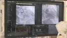 rvh cardiac care