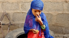 A hungry girl eats boiled leaves in Yemen