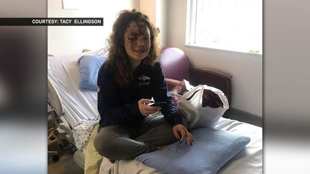 Jaz Richards sits in hospital during her recovery from the injuries she suffered when the car she was driving left the road and flipped (photo courtesy: Tacy Ellingson)