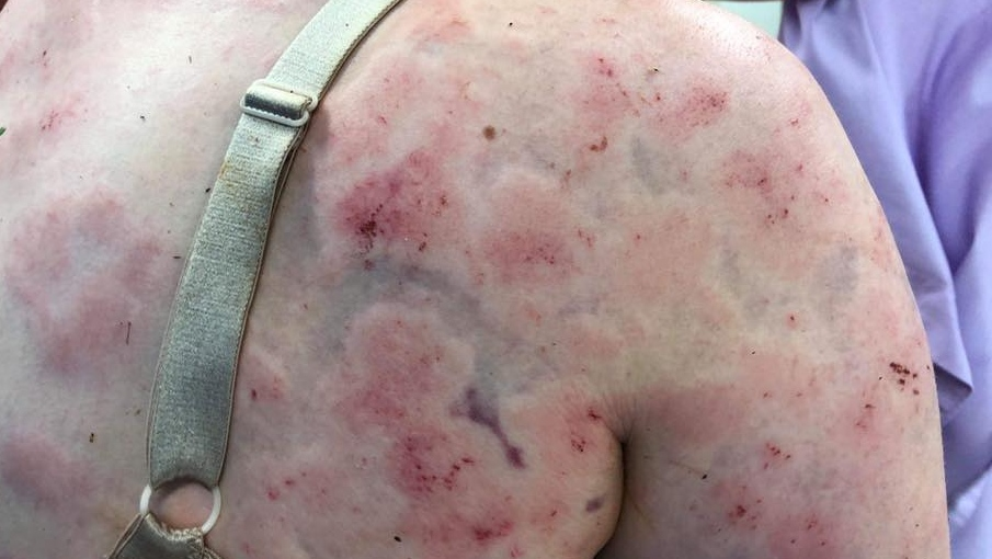 Simpson shared images of her bruised body on Facebook. (Facebook: Fiona Simpson)