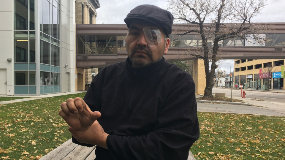 Doug Thomas was brutally attacked while attempting to assist a homeless man. (Source: Beth Macdonell/CTV Winnipeg)