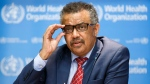 Tedros Adhanom Ghebreyesus, Director General of the World Health Organization (WHO), speaks to the media after the International Health Regulations Emergency Committee on Ebola in Congo, in Geneva, Switzerland, Wednesday, Oct. 17, 2018. (Salvatore Di Nolfi/Keystone via AP)