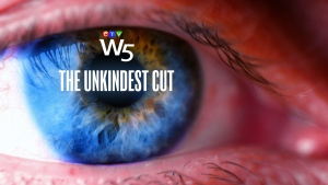 W5: The Unkindest Cut