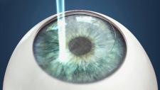 CTV National News: Risks of laser eye surgery