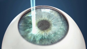 CTV National News: Risks of laser eye surgery