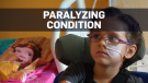 Paralyzing condition