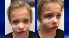Bella Willoughby, 9, suffered serious facial injuries during an encounter with a dog near Joe Clark Elementary School in High River on October 30, 2018