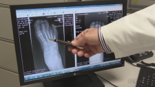 Diabetic foot health focus of research