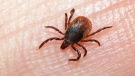 Lawsuit over Lyme Disease