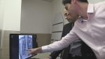 Portable detector helps detect cancer faster