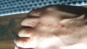 Hookworms appear under the skin of a woman who walked barefoot on the beach in Jamaica.