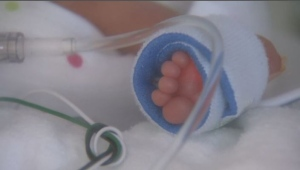 Almost six thousand babies in Quebec are born premature every year. (CTV Montreal)