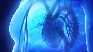 aortic dissection on the rise in Canada