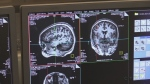 Western epilepsy research gets $2.5M boost