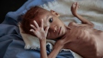 In this Oct. 1, 2018, file, photo, a severely malnourished boy rests on a hospital bed at the Aslam Health Center, Hajjah, Yemen. (AP Photo/Hani Mohammed, File)