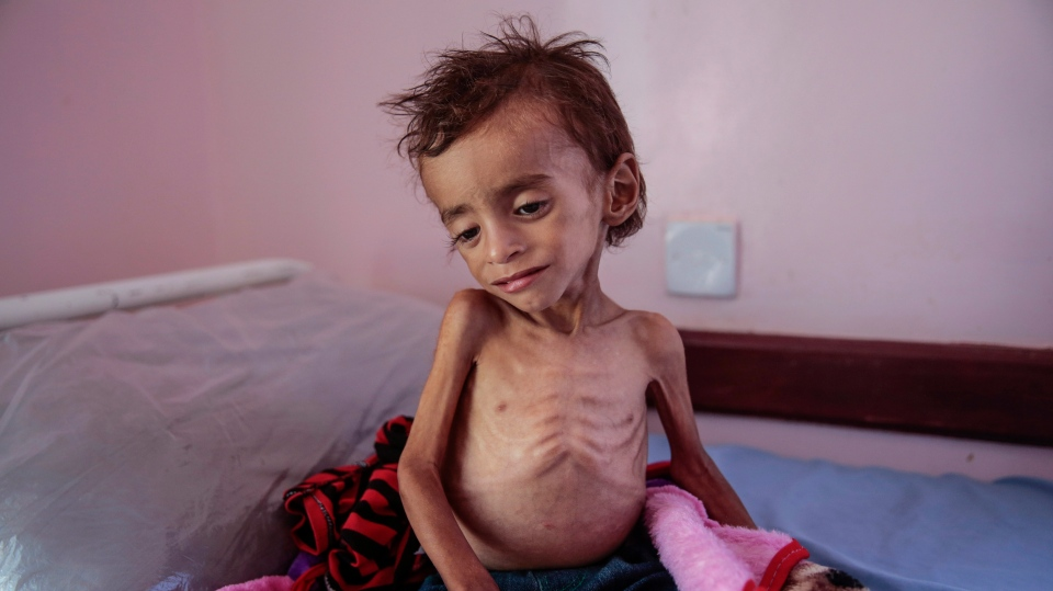 In this Oct. 1, 2018, photo, a malnourished boy sits on a hospital bed at the Aslam Health Center, Hajjah, Yemen. (AP Photo/Hani Mohammed, File)