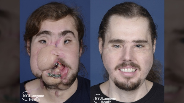 26-year-old face transplant patient reveals new face