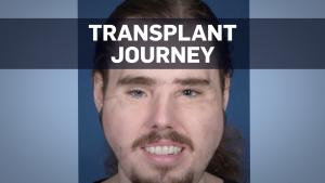 Transplant journey