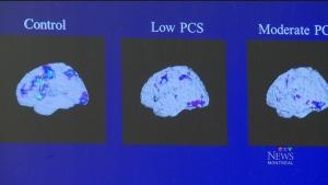 CTV Montreal: The impact of brain injuries