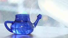 Tap water neti pot suspected in brain-eating amoeb