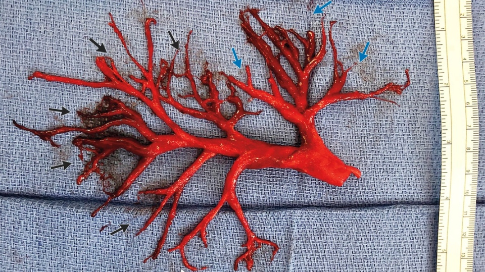 A man coughed a massive blood clot in the shape of his lung's passageway. (New England Journal of Medicine)
