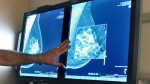 In this Tuesday, July 31, 2012 file photo, a radiologist compares an image from earlier, 2-D technology mammogram to the new 3-D Digital Breast Tomosynthesis mammography in Wichita Falls, Texas. (Torin Halsey/Times Record News via AP)