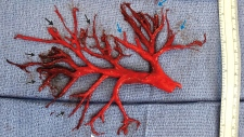 blood clot in lung