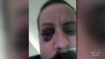 Pellet gun victim