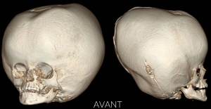 A three dimensional image of a two-year-old girl's skull, before a successful surgery in Montreal to reduce swelling caused by hyrdocephalus. (CHU Sainte-Justine)