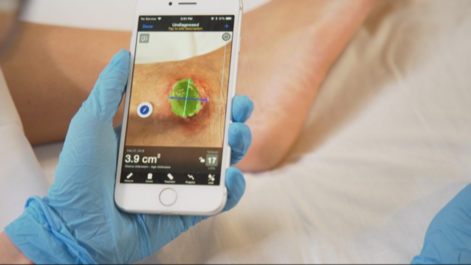A doctor uses the Swift Skin and Wound app to measure an ulcer -- highlighted in green -- to determine if it is healing.