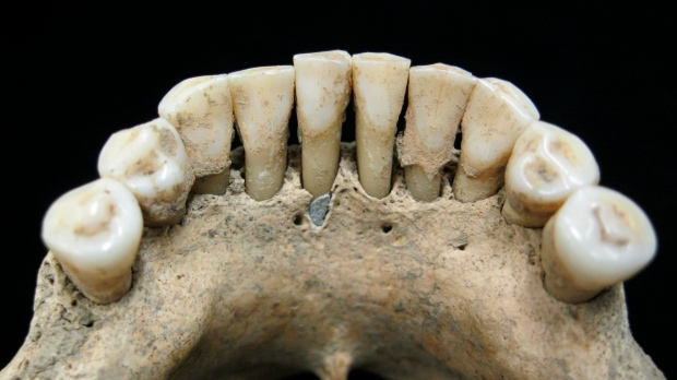 Rare blue pigment on medieval teeth gives peek at woman's hidden life