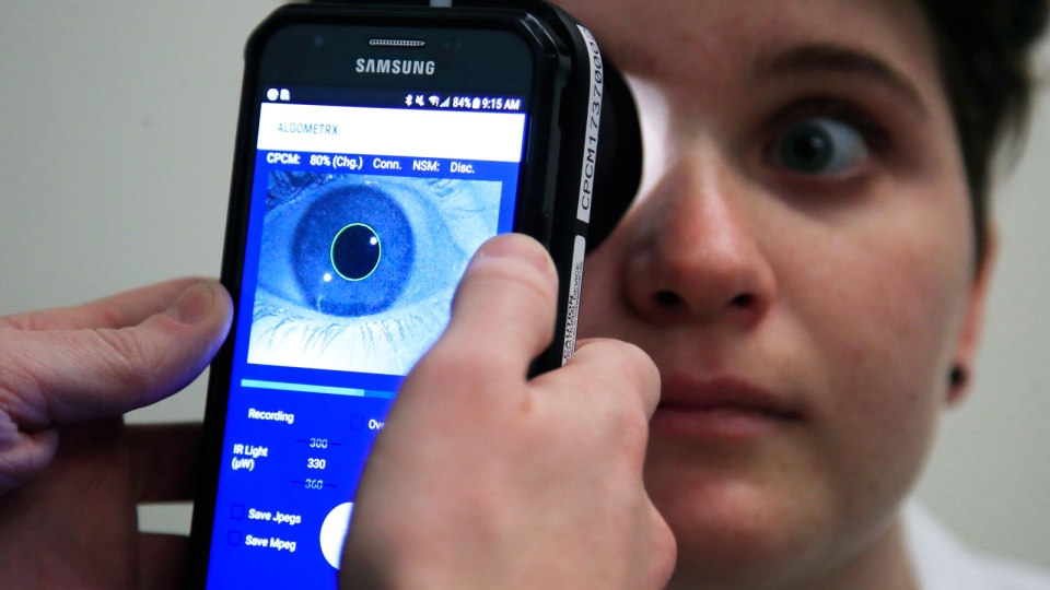 Clinical Research Assistant Kevin Jackson uses AlgometRx Platform Technology on Sarah Taylor's eyes to measure her degree of pain at the Children's National Medical Center in Washington, Monday, Dec. 10, 2018. (AP Photo/Manuel Balce Ceneta)