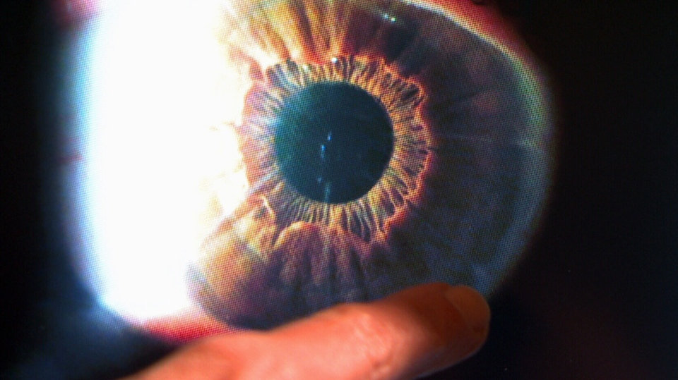 A doctor can be seen pointing at an image of an eyeball. (CTV News)