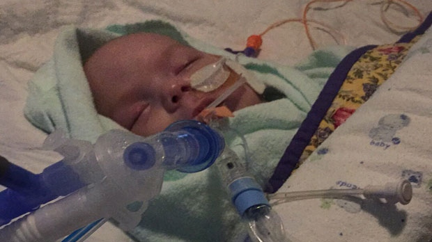 Alysse, who is now at home recovering