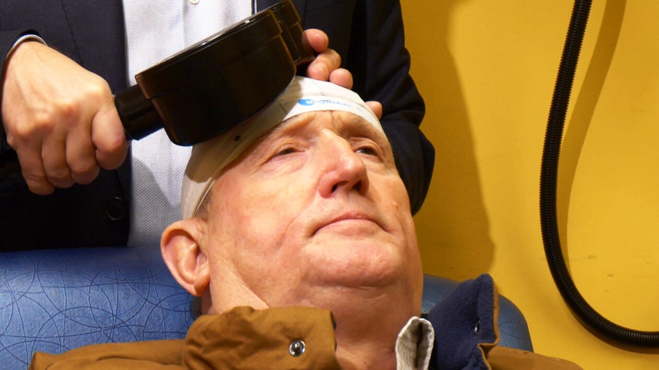 Bruce Kruger, a patient with the University Health Network, undergoes rTMS therapy. The therapy involves sending magnetic pulses to targeted regions of patients' brains in order to stimulate neurons and change the functioning of brain circuits. (CTV News)