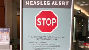 In this Jan. 30, 2019 file photo signs posted at The Vancouver Clinic in Vancouver, Wash., warn patients and visitors of a measles outbreak. (AP Photo/Gillian Flaccus,File)