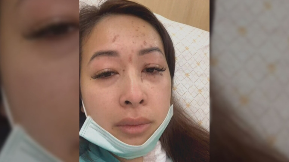 Tammy Nguyen speaks to CTV Vancouver via video chat from a Bangkok hospital on Feb. 16, 2019. (CTV Vancouver)