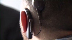 Close up of Duchoeny's cochlear implant, which he received 20 years ago in Vermont after Montreal-area hospitals refused to perform the procedure. (CTV Montreal)