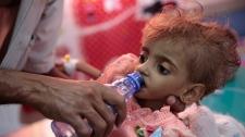 Yemeni famine