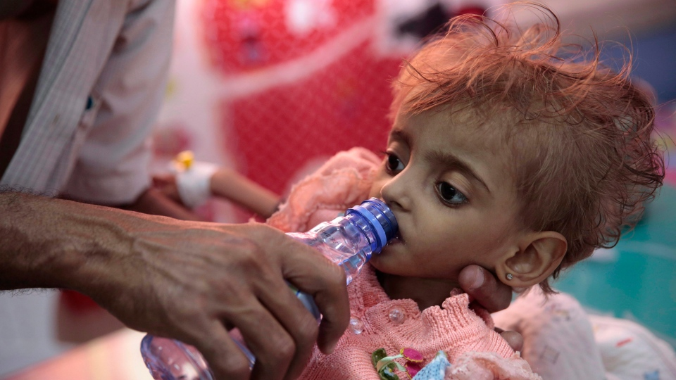 In this Sept. 27, 2018 file photo, a father gives water to his malnourished daughter at a feeding center in a hospital in Hodeida, Yemen. (AP Photo/Hani Mohammed, File)