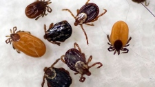 Ticks collected by South Street Veterinary Services in Pittsfield, Mass., are shown in a Monday, May 15, 2017 file photo. THE CANADIAN PRESS/AP-Ben Garver/The Berkshire Eagle via AP