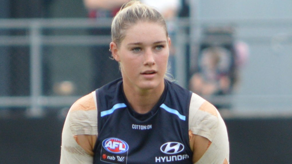 Aussie rules football player says she received 'repulsive' comments over photo