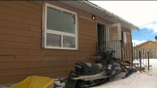 CTV National News: Mould-infested houses
