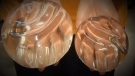 CTV National News: Cancer linked to breast implant